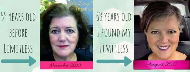 before and after Limitless Worldwide, Llc